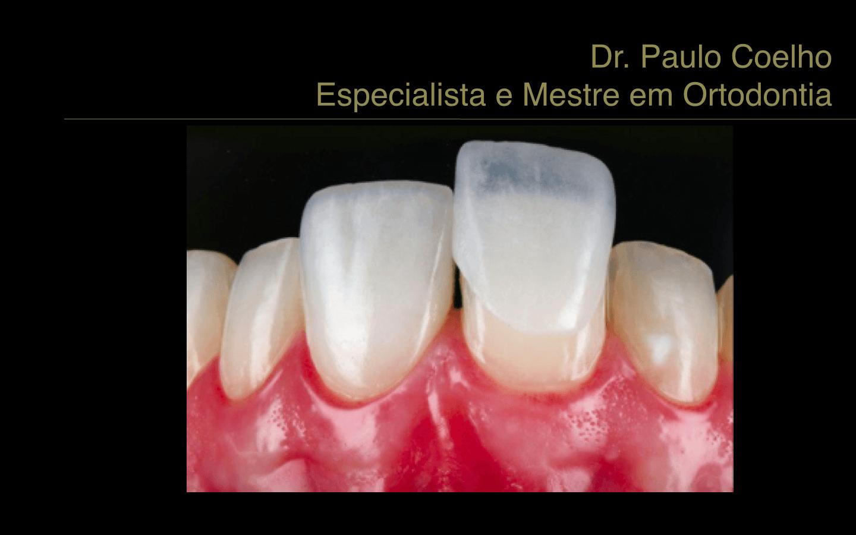 Facetas-e-lente-de-contato-dental-2