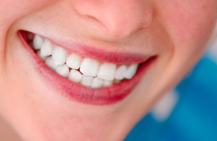 cbc7e946c157 O que é Prótese Dentária Fixa?   Como Funciona?  Dr Paulo Coelho