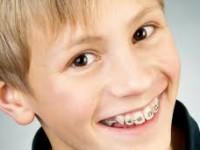 Aparelho Dentário Infantil
