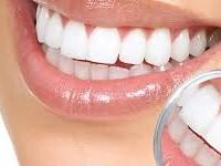 Clareamento dental sem supervisão de um especialista pode oferecer riscos
