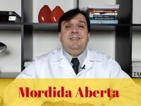 O que é Mordida Aberta ?