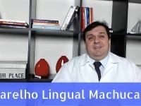 Aparelho Lingual machuca ?