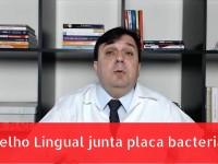 Aparelho Lingual Acumula Placa Bacteriana?