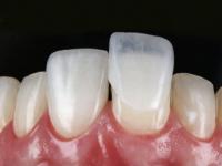 O que é mais caro a Faceta ou Lente de Contato Dental