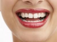Diastema Dentes Separados eu não aguento mais …