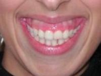 Botox no tratamento do sorriso gengival