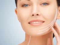 Fios de Sustentação na Harmonização Facial