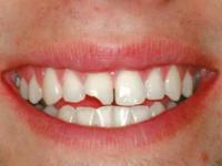 Lente de Contato Dental Quebra?