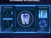 Scanner Intraoral do Invisalign