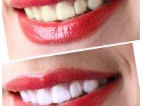 Lente de Contato Dental |Antes e Depois