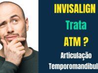 Invisalign trata Disfunção da Articulação Temporomandibular
